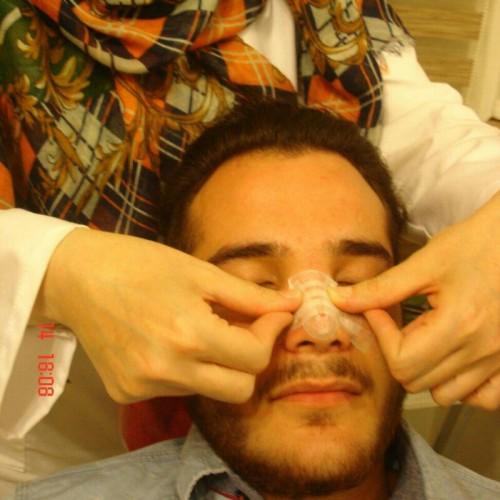 کانال جراحی بینی دکتر راستا
