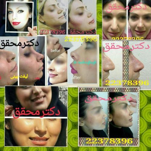 کانال تلگرام مطب زیبایی چهره سازان
