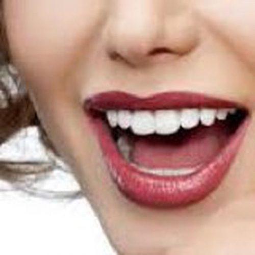 کانال تلگرام کلینیک دندانپزشکی دکتر شمشیر