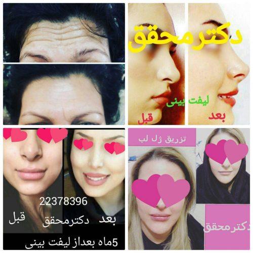 کانال مطب زیبایی چهره سازان