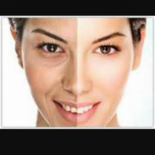فروش کرم شفاف وصاف و…کننده پوست صورت