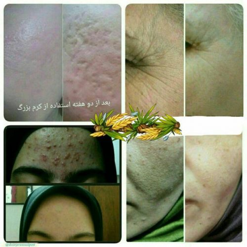کانال اکسیر جوانسازی پوست