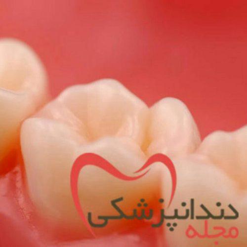 کانال تلگرام مجله دندانپزشکی