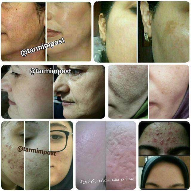 کانال معجزه زیبایی پوست